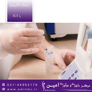 عکس درمان-ناباروری-با-iui-